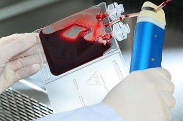 山东省脐血库第884例脐带血出库