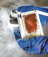 脐带血移植救治60公斤白血病成人患者