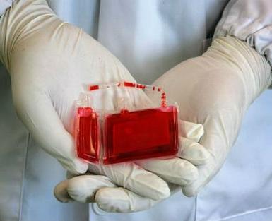 【出库病例】山东省脐血库第2194-2196例脐带血出库