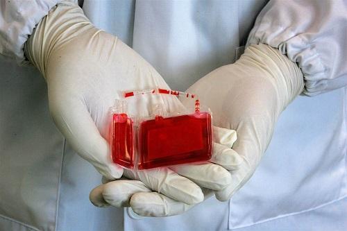 【出库病例】山东省脐血库第2952-2955例脐带血出库